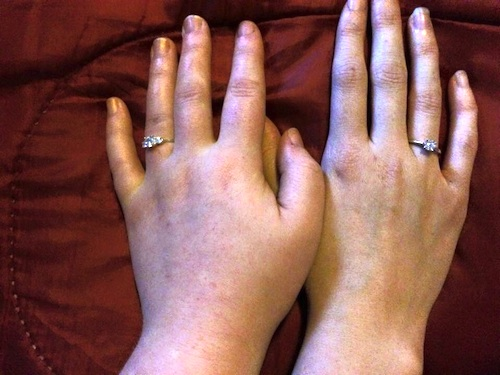 Hands with engagement rings